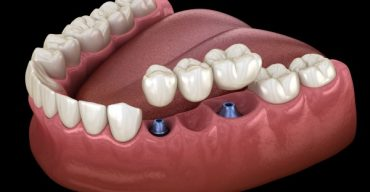 Prime Quotes On All On Dental Implants In Mexico
